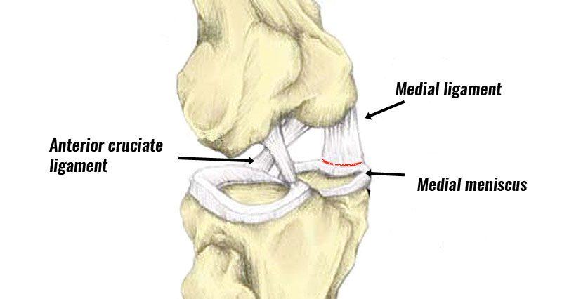 Unhappy triad knee injury