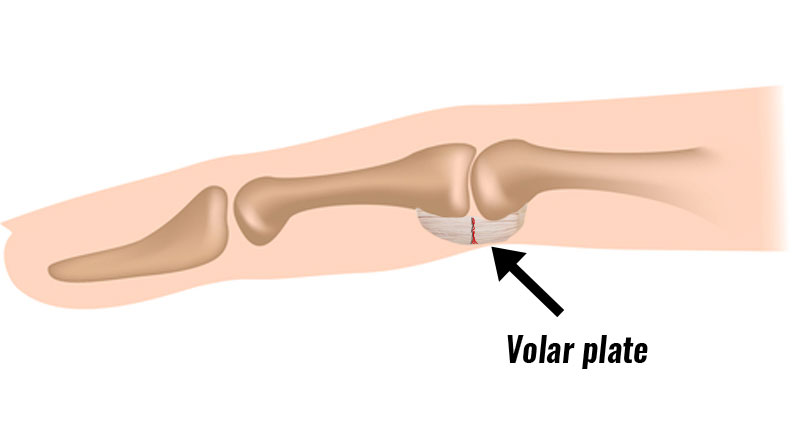 Volar plate injury