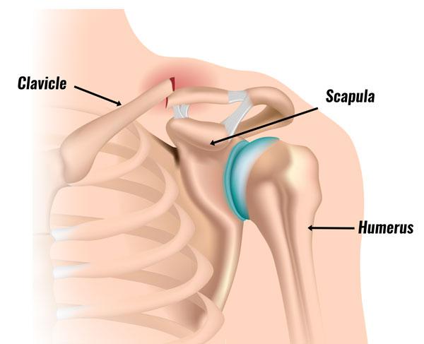 Clavicle fracture - broken collar bone