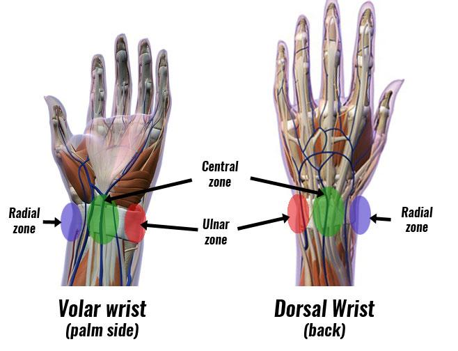 Wrist pain zones - volar, palmer, ulnar, radial