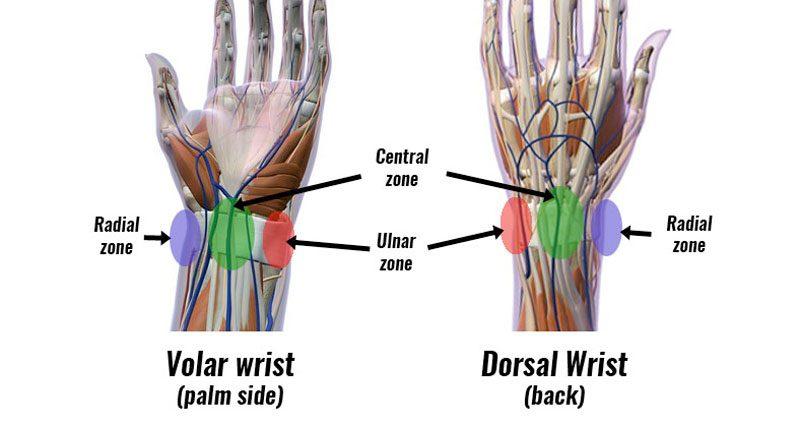 Volar Dorsal wrist pain