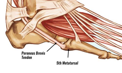 Peroneus brevis tendon insertion