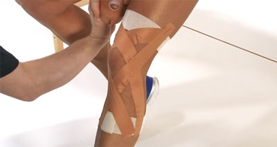 ACL sprain taping
