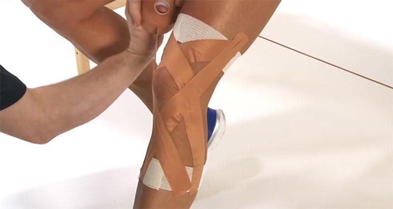 ACL sprain taping