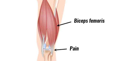 Biceps femoris hamstring tendon