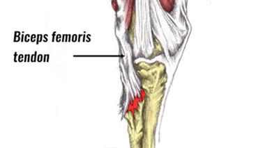 Biceps femoris avulsion