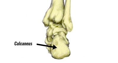 Calcaneal stress fracture