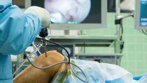 Knee surgery for ACL sprain
