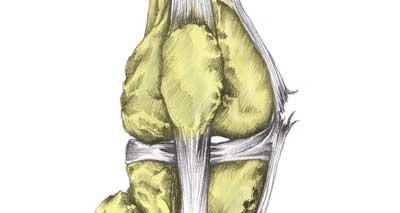 MCL knee sprain