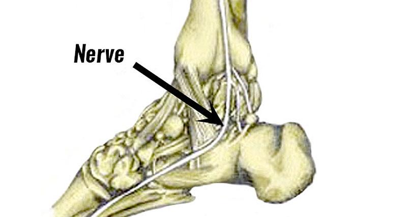 Medial calcaneal nerve