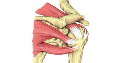 Rotator cuff shoulder pain