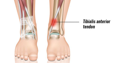 Anterior Ankle Pain Front Symptoms Causes Treatment