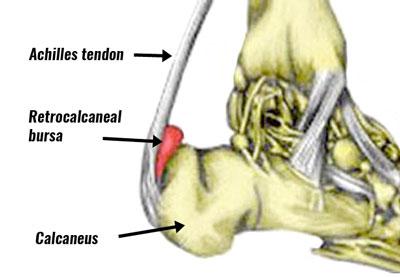 Achilles bursitis