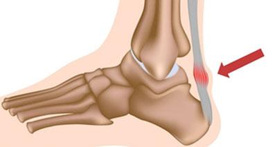 Achilles Tendon Pain - Symptoms, Causes