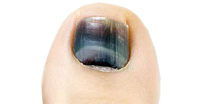 This image has an empty alt attribute; its file name is black-toenail400.jpg
