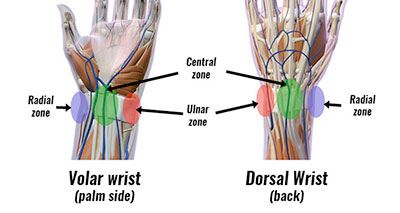 Wrist pain by location
