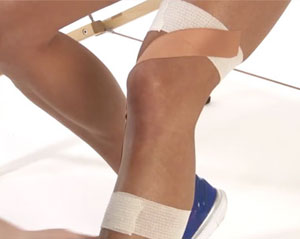 knee ligament taping